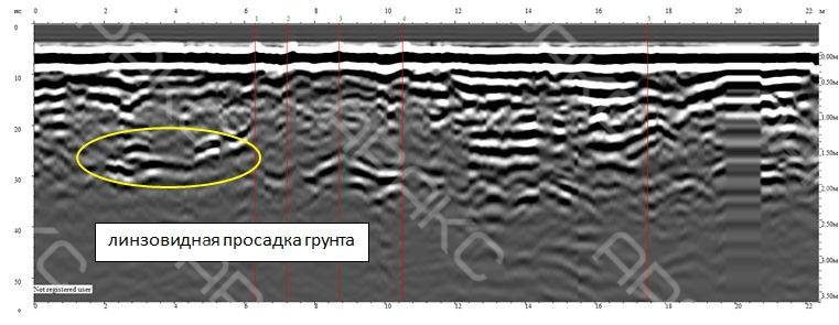 Линзовидная просадка грунта на радиограмме