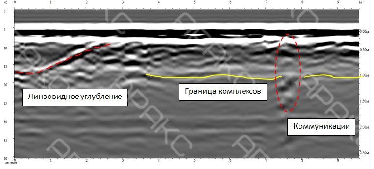 Линзовидная зона разуплотнения на радиограмме