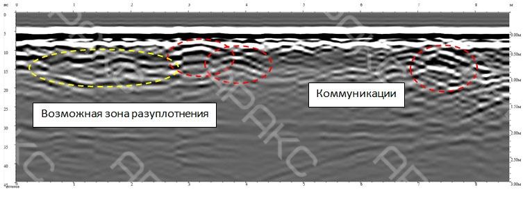 Возможная зона разуплотнения на радиограмме